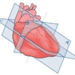 Ecocardiografía básica